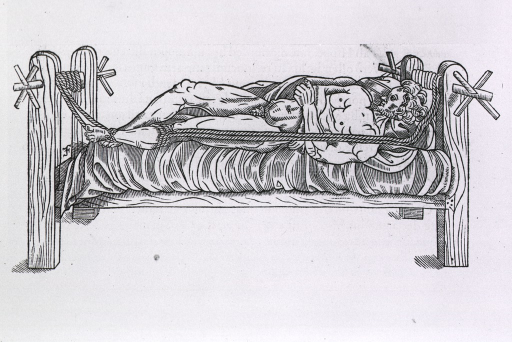<p>Man in traction bed - leg held in traction by ropes that can be adjusted by turning rods at either end of bed.</p>