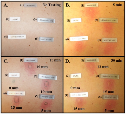 Wheal And Flare Responses In A Patient Skin Tested With