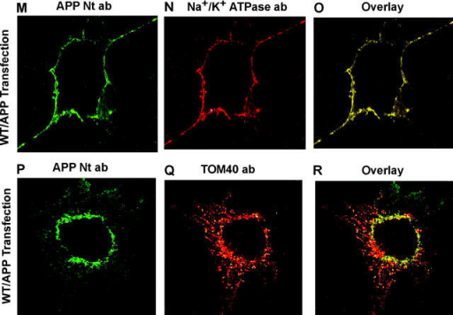 Subcellular localization of WT/APP and 3M/APP by immunofluorescence microscopy. HCN-1A cells (A–L) and COS cells (M–R) were transfected with WT/APP (A–F) or 3M/APP (G–L). The inset in F is a twofold enlargement of a region showing APP Ab–stained granular structures both overlapping and nonoverlapping with mitochondrial stain, as indicated by arrows. Nonpermeabilized cells (A–C, G–I, and M–O) were double immunostained with APP Nt Ab and monoclonal antibody to Na+/ K+ ATPase. Permeabilized cells (D–F, J–L, and P–R) were double stained with APP Nt Ab and rabbit polyclonal antibodies to TOM40. Staining patterns (A, B, D, E, G, H, J, K, M, N, P, and Q) were developed with appropriate secondary antibodies conjugated to Alexa dyes. (C, F, I, L, O, and R) Respective overlay patterns.