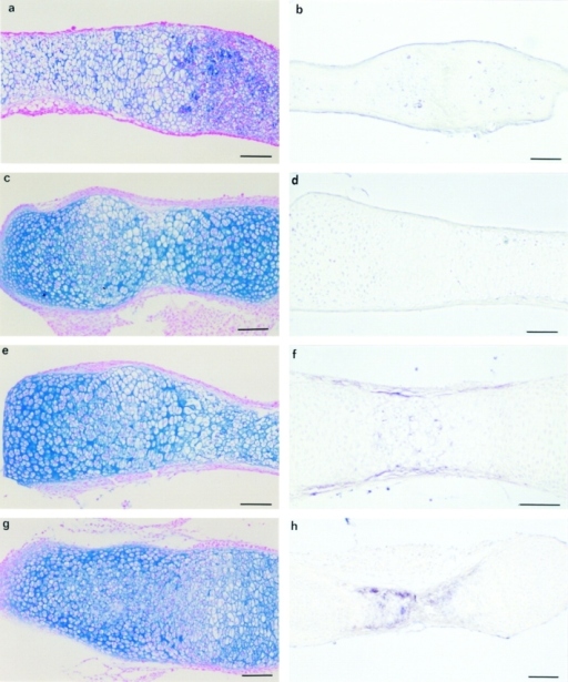 Collagenase-3 expression in metatarsal bone rudiments from embryos with targeted deletion of the Cbfa1 and MT1-MMP genes. Cbfa1- (a–d) and MT1-MMP– (e–h) metatarsal rudiments were untreated (a, b, e, and f) or treated with RA (c, d, g, and h) and stained with Alcian blue and nuclear fast red (a, c, e, and g) or hybridized with a labeled antisense riboprobe for collagenase-3 (b, d, f, and h). Untreated Cbfa1−/− rudiments showed signs of cellular disorganization, especially in the hypertrophic zone where a clear Alcian blue staining was observed (a). Treatment of Cbfa1−/− metatarsi with RA resulted in a marked inhibition of the chondrocytic hypertrophy (c). In situ hybridization studies failed to find positive signal for collagenase-3 in either untreated (b) or RA-treated (d) rudiments. Untreated MT1-MMP−/− rudiments showed a disorganized hypertrophic zone with an intense Alcian blue staining (e). Collagenase-3 expression was low but could be observed in cells located mainly in the perichondrium (f). Treatment of MT1-MMP−/− metatarsi with RA induced some cytological changes (g) and resulted in an increased collagenase-3 expression (h) at the hypertrophic chondrocytes. Bars, 200 μm.