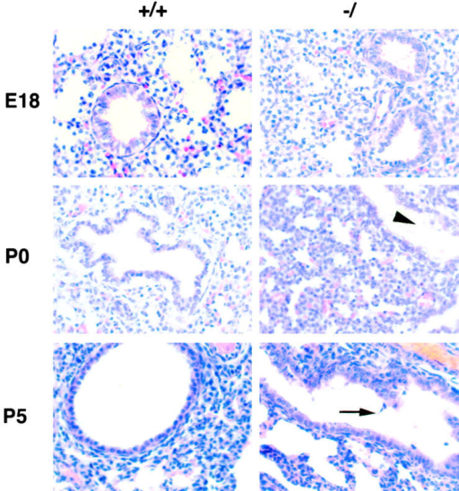 Histological analysis of wild-type (+/+) and GPC3 deficient (−/) lungs. Hematoxylin and eosin stained sections of lungs at E18, P0, and P5 are shown. Accumulation of mucus (arrowhead) and cellular debris (arrow) is indicated. Original magnification is 400.