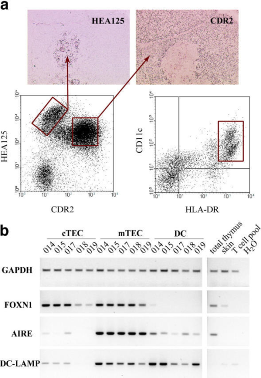 Isolation of distinct stromal cells of the human thymus. (a) Sort regions selected for the isolation of thymic stromal cell subsets; the coexpression profile for CDR2 and EpCAM of low density, CD45 negative trypsin-digested cells is shown. Cortical TECs are defined as CDR2hi, EpCAMint, and mTECs as CDR2−, EpCAMhi. The corresponding histological staining patterns of both Abs are shown. Thymic DCs are defined as CD11cint/hi, HLA-DRhi, EpCAMneg cells of low density. (b) Expression of a selected panel of marker genes was assessed in purified cTECs, mTECs, and DCs of five thymi by RT-PCR. The cell type–specific expression patterns document the purity of the respective subsets. The expression of DC-LAMP in mTECs probably reflects its promiscuous expression rather than contamination by DCs. The amount of input cDNA was normalized according to signals obtained for GAPDH in a titration experiment (not depicted).