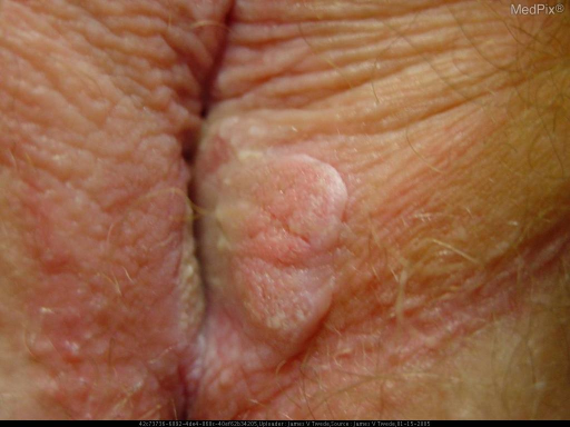 Verrucous, hyperkeratotic, well circumscribed plaque on both labia minora