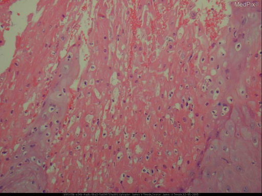 Histopathology: The biopsy shows neutrophils within the stratum corneum, parakeratosis, and marked epidermal hyperplasia without significant atypia. The papillary dermis contains foamy cells with acute and chronic inflammation. PAS stains were negative for fungi.