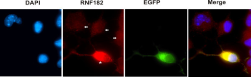Subcellular localization of RNF182. N2a cells were transiently transfected with pEGFP-RNF182 plasmid DNA. Cells were fixed and stained with anti-RNF182 antibody. Cy3-conjugated anti-rabbit IgG was used to detect the specific immunostaining. The nuclei were stained with DAPI and viewed with a Zeiss Axiovert 200 M × 63 fluorescence microscope. Arrows indicate non-transfected cells. Asterisk represents a transfected cell.