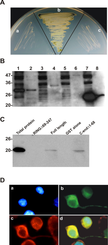 RNF182 physically interacts with ATP6V0C. A. Interaction between RNF182 and ATP6V0C in yeast two-hybrid system. Empty or RNF182 containing pGBKT7 bait vector and empty or ATP6V0C containing pACT2 library vector were co-transformed into yeast host cells AH109 and plated onto SD/-Trp -Leu -Ade -His +X-α-gal plate. In: a – a negative test of empty bait vector and ATP6V0C; b – a positive test showing the interaction between RNF182 and ATP6V0C; c – a negative test of RNF182 bait plus empty library vector. B. Total cellular proteins were extracted from HEK-293 cells co-transfected with flag-tagged ATP6V0C and GST-tagged RNF182 constructs and precipitated with glutathione-sepharose beads as described in the Materials and Methods. The precipitates were separated by 12% SDS-PAGE and transferred onto nitrocellulose membrane. The presence of RNF182 fragments in the complex was revealed by Western blotting with anti-GST antibody. Lanes 1, 3, 5, 7 represent total cellular proteins extracted from cells co-transfected with ATP6V0C and GST-RNF182 RING finger domain, GST-RNF182 C-end domain, GST-RNF182 full length, or GST alone, respectively. Lanes 2, 4, 6, 8 indicate GST fused protein fragments precipitated by glutathione-sepharose beads from cells co-transfected with ATP6V0C and GST-RNF182 RING finger domain, GST-RNF182 C-end domain, GST-RNF182 full length, or GST alone, respectively. C. The presence of ATP6V0C in the co-precipitated protein complexes shown in B (lanes 2, 4 6, 8) was revealed by Western blotting using anti-flag antibody. In: lane RINGΔ69–247 – GST-RNF182 RING finger domain, lane C-endΔ1–68 – GST-RNF182 C-end domain. D. Co-localization of RNF182 and ATP6V0C. N2a cells were co-transfected with flag tagged ATP6V0C and EGFP tagged RNF182 for 24 h. Cells were fixed and stained with anti-flag antibodies. Cy3-conjugated anti-rabbit IgG was used to detect the specific immunostaining. The nuclei were stained with DAPI and viewed with a Zeiss Axiovert 200 M × 40 fluorescence microscope. a. DAPI stained nuclei. b. EGFP tagged RNF182. c. Flag tagged ATP6V0C. d. a, b and c overlay.