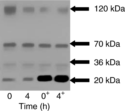 Western immunoblotting demonstrating that an HBSS-soluble extract from pancreatic cancer tissues does not degrade exogenous recombinant endostatin over 4 h. Exogenous endostatin (5 ng) was added to the samples in the lanes marked +.