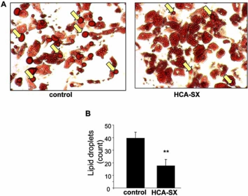 Effect of HCA-SX treatment on the formation of lipid droplets. Differentiated adipocytes from overweight non-diabetic women were cultured with or without HCA-SX (0.5 mg/mL) for 96 hours. After treatment, cells were fixed in 10% buffered formalin, stained with oil red O and images were recorded (A). Large oil droplets (indicated by yellow arrows) in each image were counted with Zeiss Axiovision software (B). Image reproduced with permission from Mary Ann Liebert, Incorporated [95].
