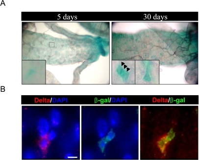 Increased expression of D-p38b in ISCs and EBs within aged gut. (A)                                        Increased expression of D-p38b-lacZ reporter construct in the adult                                        posterior midgut with age. The midguts of 5- and 30-day-old flies,                                        including those with two copies of the D-p38b-lacZ, were examined by                                        X-gal staining. Squared boxes are enlarged images. Arrow head indicates β-gal-positive                                        cells. Original magnification is 400x. (B) Increased expression of D-p38b-lacZ                                        reporter construct in the Delta-positive and neighboring cells in aged gut.                                        The midguts of 30-day-old flies were examined with anti-β-gal and                                        anti-Delta. Anti-β-gal, green; anti-Delta, red; DAPI, blue. Scale bar,                                        1 μM.