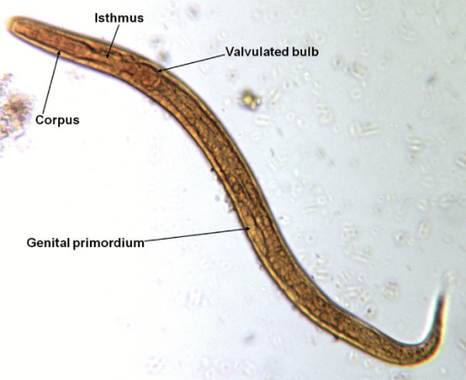 Baermann test: Strongyloides stercoralis, first stage larva, iodine stained.