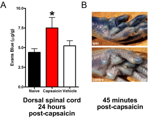 Local application of capsaicin increases BSCB permeability. A: 1% Capsaicin or vehicle was applied onto the sciatic nerve and Evans Blue extravasation was measured 24 hours later. All readings are from lumbar spinal cord ipsilateral to capsaicin or vehicle. Data are presented as mean ± SEM; **p < 0.01 compared to naïve, n = 5-9 per group.B: 1% Capsaicin was applied to the sciatic nerve and Evans Blue was injected immediately after capsaicin. Ipsilateral and contralateral paw images were captured 45 minutes after capsaicin treatment.