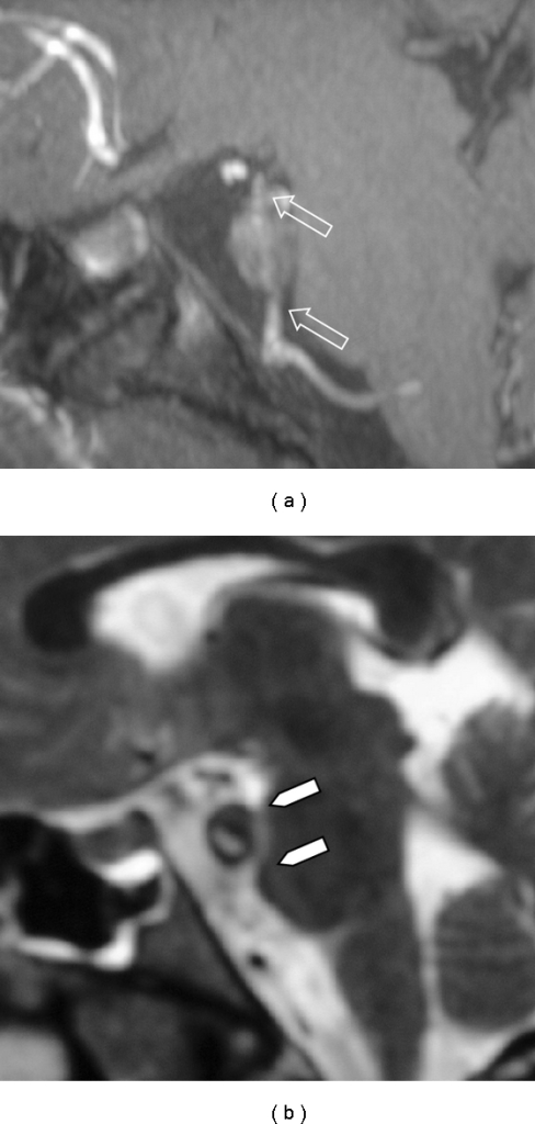 MRA (a) and MRI sagittal sections (b), obtained 11 days after the initial symptoms, demonstrate the presence of a BA aneurysm with mass effect on the pons (arrowheads in (b)) and ischemic changes (not shown). At both edges of the aneurysm, stenosis of the BA is recognizable (arrows in (a)).