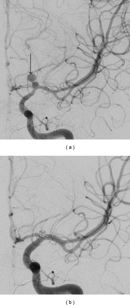 Anteroposterior view of the left internal carotid artery angiography shows a blister-like aneurysm at the intracranial bifurcation (a). Note the small pseudoaneurysm (arrow in (a)) at the dome of the aneurysmal sac, corresponding to the image seen on the CT (Figure 7), and the spasm in the supraclinoid portion of the carotid artery. The posttreatment angiography shows successful obliteration of the aneurysm with stent and a single platinum coil (b).