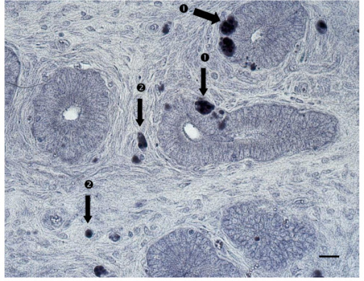 In situ hybridization of uterine tissues (bar = 10 micrometers). CAEV RNA positive staining (brownish-purple intracytoplasmic inclusions) could be identified (black arrow) in the uterine glands ① and in the lamina propria of the mucosa ② of uterine sections.