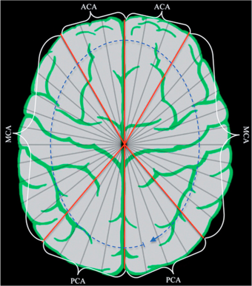 Brain map devided into 36 segments and the six analysed vascular terretories.