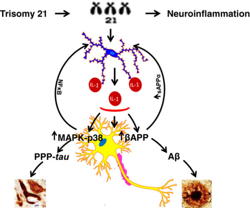 Schematic highlighting the importance of inflammation-associated genes in the promotion of Alzheimer neuropathogenesis in trisomy 21. Chromosome 21 genes triplicated in trisomy 21 activate microglia with overexpression and release of proinflammatory cytokines, especially IL-1β, which, in turn, induces further increases in precursor protein for β-amyloid (APP), favoring β-amyloid (Aβ) plaque deposition, and in mitogen-activated protein kinase (MAPK)-p38-dependent phosphorylation and production of phosphorylated tau, favoring neurofibrillary tangle formation, and through nuclear factor κB (NFκB) activity such changes sustain neuroinflammatory responses and consequent neuropathological change.