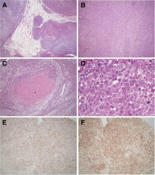 The pathological findings of the tumor showed (A) sinusoidal and capsular invasion with irregular border (hematoxylin and eosin, 40×), (B) sheet-like arrangement (40×), (C) central necrosis (100×), (D) high grade nucleus with frequent mitoses (400×), and positive immunohistochemical staining for both (E) melan A and (F) alpha-inhibin.