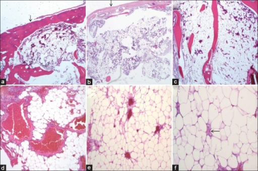 Microscopic images showing the lesion and the characteristic features of an intraosseous angiolipoma. (a) The bone (arrow) is expanded by an underlying vascular and fatty lesion (× 4 magnification). (b)The lesion involves the leptomeninges (arrow) (× 4 magnification) (c) Trabeculation of bone within the lesion intermixed with the adipocytes and vessels (× 4 magnification). (d) More prominent vasculature (× 10 magnification). (e) The lesion showing evenly sized bland adipocytes and interspersed small vessels (× 10 magnification). (f) T hin fibrous septa separating the adipocytes, which lack dysplasia or hyperchromasia. The arrow shows a fibrin thrombus (× 20 magnification)