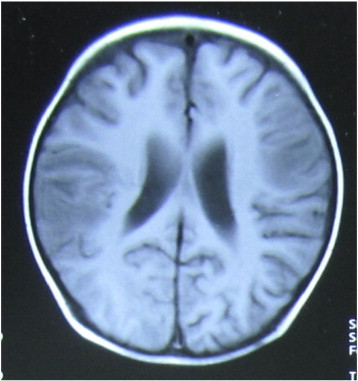 Infiltrated lesions in the right parietal and left frontal lobes.