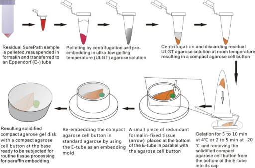 Schematic flow chart of the protocol for preparation of compact agarose cell blocks from the residues of liquid-based cytology samples.
