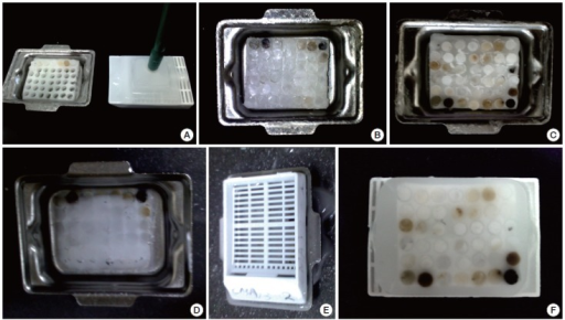 Construction of a cell block microarray (CMA) for high-throughput immunocytochemistry of cell blocks. A 3-mm tissue punch is used to extract cores of agarose cell buttons from the agarose cell blocks and implant them in a ready-to-use homemade recipient agarose paraffin block (A, B). The CMA is completely melted on a heat plate to facilitate complete integration of cell block cores into the recipient agarose paraffin block (C, D). Finally, the CMA is re-embedded in paraffin and trimmed to expose the cell block cores (E, F).