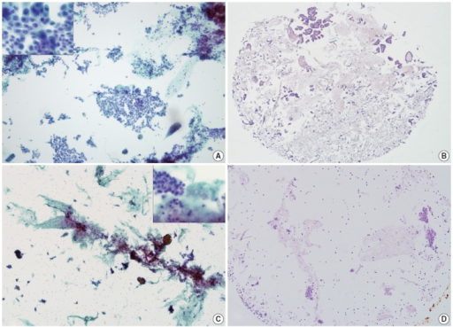 Representative SurePath smears and corresponding agarose cell blocks of thyroid fine needle aspirations. High cellularity in a SurePath smear of papillary thyroid carcinoma (A) correlates well with that of the agarose cell block section (B). Low cellularity in a SurePath smear of subacute granulomatous thyroiditis (C) correlates well with that of the agarose cell block section (D). Insets depict high power views.