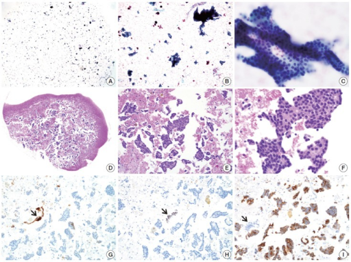 "SurePath smear and agarose cell block from parathyroid lesion. The SurePath sample is allegedly from an intrathyroidal nodule. The smear (A–C) with cohesive clusters and solid sheets of relatively monomorphic epithelial cells was interpreted as ""atypia of undetermined significance."" The diagnosis is confirmed by cytoarchitectural examination (D–F) and immunocytochemical analysis (G, thyroglobulin; H, thyroid transcription factor-1; I, parathyroid hormone; arrows indicating positive and negative controls) of cell block sections."