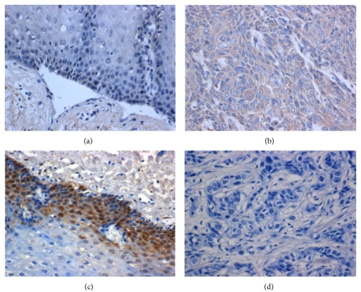 miR-21 negatively correlated with PDCD4 expression in ESCC tissues. ((a), (b)) miR-21 was detected as a weak positive staining in normal epithelium, strongly positive staining of the tumor. ((c), (d)) PDCD4 was detected as a strongly positive staining in normal epithelium, weak positive staining of the tumor.