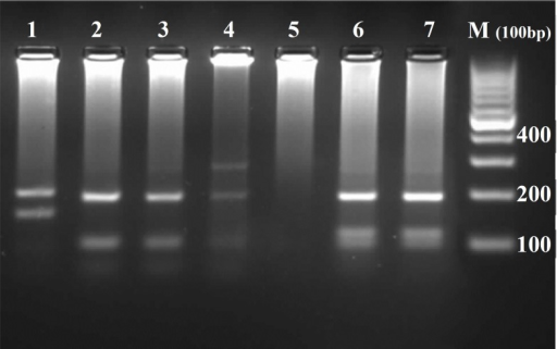 Agarose gel electrophoresis, showing PCR-RFLP results. Lane 1: Leishmania major; lanes 2-4: L. tropica; lane 5: negative control; lanes 6 and 7: L. infantum; M: molecular weight marker