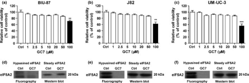 Determination of the effect of N1-guanyl-1,7-diaminoheptane (GC7) on cytotoxicity and inhibition of eukaryotic translation initiation factor 5A2 (eIF5A2) activity in bladder cancer cells. BIU-87 (a), J82 (b), and UM-UC-3 (c) cells were incubated with different concentrations of GC7 for 48 h. The CCK8 values of the treated bladder cancer cells were normalized to the control group (Ctrl), which was incubated without GC7. **P < 0.01; ***P < 0.001. Effects of GC7 (50 μM) on hypusine formation of eIF5A2 in BIU-87 (d), J82 (e), and UM-UC-3 (f) cells after incubation in the presence of 3H-labeled spermidine were measured by fluorography after SDS-PAGE separation. Western blot analyses showed eIF5A2 steady state protein expression.