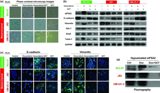 N1-guanyl-1,7-diaminoheptane (GC7) alters the expression of doxorubicin-induced epithelial–mesenchymal transition (EMT) markers in bladder cancer cells. Phase-contrast microscopic images (a), Western blot analyses of expression of EMT markers (E-cadherin and vimentin), and EMT-associated transcription factors (Twist-1, Zeb-1, and snail) (b), and immunofluorescent images of EMT markers (c) in control bladder cancer cells and bladder cancer cells treated for 48 h with doxorubicin alone, GC7 alone, or doxorubicin plus GC7. (d) Activity of eukaryotic translation initiation factor 5A2 (eIF5A2) was measured by fluorography through detection of newly synthesized hypusinated eIF5A2 in bladder cancer cells treated with doxorubicin (Dox), doxorubicin plus GC7, or vehicle.