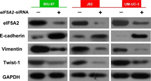 Knockdown of eukaryotic translation initiation factor 5A2 (eIF5A2) alters doxorubicin-induced epithelial–mesenchymal transition in BIU-87 cells and the mesenchymal phenotype of J82 and UM-UC-3 bladder cancer cells. Western blot analyses of expression of epithelial–mesenchymal transition markers (E-cadherin and vimentin) and E-cadherin repressor (Twist-1) in bladder cells transfected with eIF5A2 siRNA (+) or negative siRNA (−) and treated with doxorubicin for 48 h.