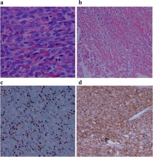Histopathology of resected solitary fibrous tumor. a. Hematoxylin and eosin stain of tumor showing hypercellularity with moderate atypia. b. Hematoxylin and eosin stain showing spindle cells within hyalinized stroma in the tumor. c. Ki67 proliferation index (>10 mitoses per 10 high power fields, positive cells stained brown). d. Diffuse CD34 positivity within the tumor.