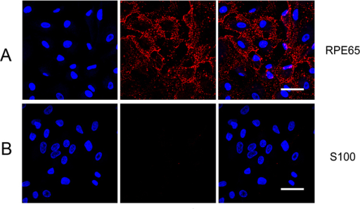 Phenotype identification of the cultured human RPE cells using immunofluorescence (representative image; n = 5). A: All of the cultured cells were positively stained with the RPE65 antibody. B: All of the cultured cells were negatively stained with the S100 antibody. Nuclei were stained by 4',6-diamidino-2-phenylindole (DAPI). Scale bar = 50 μm.