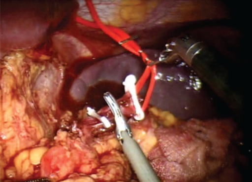 Section of the splenic artery after placement of hem-o-lok.