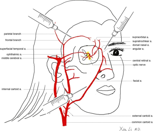 Schematic Of The Blood Supply Of The Face And Eye In Re Open I