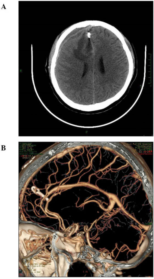 (A) Postoperative computed tomography (CT) scan showed that the hematoma and arteriovenous malformation had been completely removed. (B) Postoperative CT angiography demonstrated that the aneurysm had been clipped.