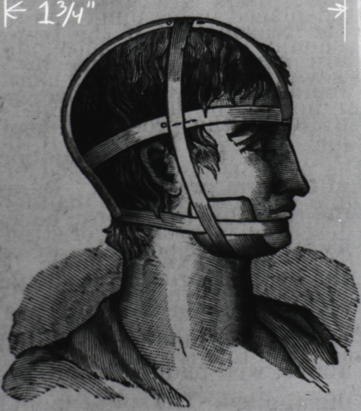 <p>Head of a man in profile with proper restraint to immobilize a fractured jaw.</p>