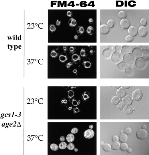 Cells with inadequate Gcs1 + Age2 activity are impaired for endocytosis. Cells growing at 23°C were incubated with the membrane dye FM4-64 for 10 min, transferred to fresh dye-free medium for a further 1-h incubation at 23 or 37°C, and visualized by DIC optics and fluorescence microscopy (FM4-64).