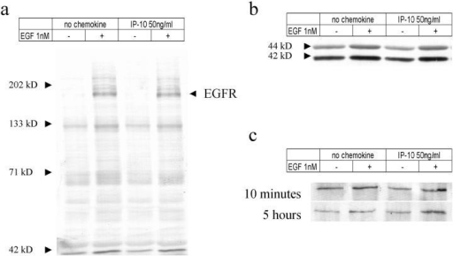 Tyrosine phosphorylation induced by EGF stimulation. Cells were grown to confluence and quiesced with the DME containing 0.1% dialyzed FBS for 48 h. (a and b) Cells then were treated with IP-10 (50 ng/ml) for 10 min before the 5 min of EGF (1 nM) stimulation. Cells were then lysed, and equal volumes of proteins were analyzed for phospho-tyrosine (a) and phospho-erk-MAPK (b) by immunoblotting. (c) For PLC-γ analyses, cells were treated with IP-10 (50 ng/ml) for 10 min or 5 h before the 5 min of EGF (1 nM) treatment. Cell lysates containing same amounts of proteins were immunoprecipitated with anti–PLC-γ antibody. Then immunoprecipitates were analyzed by 7.5% SDS-PAGE and immunoblotted with anti–phospho-tyrosine antibody PY-20. Representative blots of three independent experiments are shown.