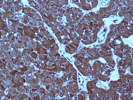 Strong and diffuse expression of PTHrP in the oxyphil adenoma (200 × original magnification).