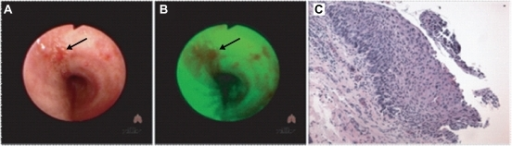 Detection of carcinoma-in-situ bronchial lesions.Bronchoscopy using A. white light for detection of CIS lesions (indicated by arrow), or B. LIFE (lung-imagine fluorescent endoscopy) for detection of CIS lesions (indicated by arrow). C. Histological section identifying a CIS lesion within the bronchial epithelium, typified by extensive squamous stratification.