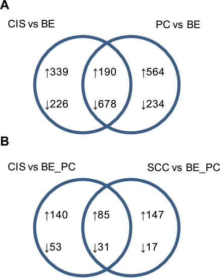 Venn diagrams of differentially expressed genes discussed in this manuscript.Criteria for differential gene expression was defined as a minimal three-fold difference in normalized mean tag counts, and with a minimal mean tag abundance of 40 TPM in the over-expressing datasets. Up-arrows indicate up-regulated gene expression changes; down-arrows indicate down-regulated gene expression changes; numerical values refer to the number of differentially expressed tags. Areas of interception reflect gene expression changes in common between the two datasets. A. Expression changes in carcinoma-in-situ and precancerous lesions relative to BE. B. Expression changes in the cancer datasets relative to both bronchial epithelium and precancerous datasets. BE: bronchial epithelial; PC: precancer; CIS: carcinoma-in-situ; SCC: invasive squamous cell carcinoma.