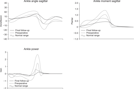 Sagittal plane kinematic and kinetic changes in the ankle before and after surgery.