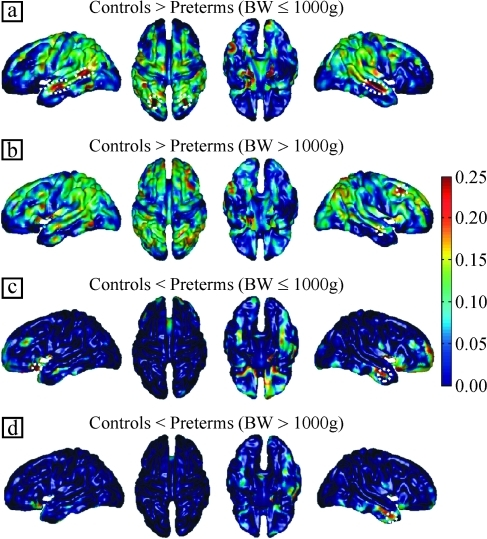 Maps of cortical thickness differences depending on BW. Differences in thickness are displayed in millimeters. The differences presented in Figure 1 are similar to those observed between the controls and preterm adolescents born with a BW of less than or equal to 1000 g (a, c). In addition, the cortical sheet was thinner in the dorsolateral prefrontal cortex (b) and thicker in the right anterior temporal lobe (d) in the subgroup born with a BW of more than 1000 g. Areas depicted with a dotted line were statistically significant (P < 0.05) after correction for multiple comparisons. All insets are in neurological convention (left is left) except the orbital view (third column), which is displayed in radiological convention (left is right).