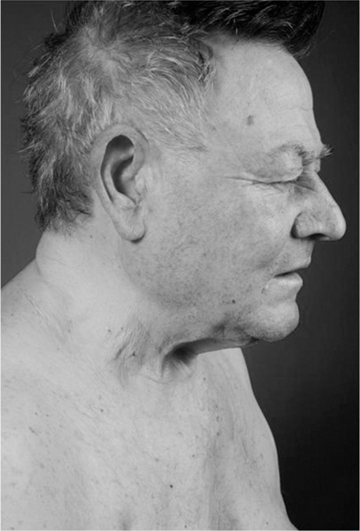 Facial erythema and hypopigmentation of hair.