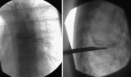 Intra-operative fluoroscopy of malpositioned wafers