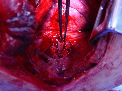 Intra-operative photo showing the resected piece of rib before insertion in the vertebral body