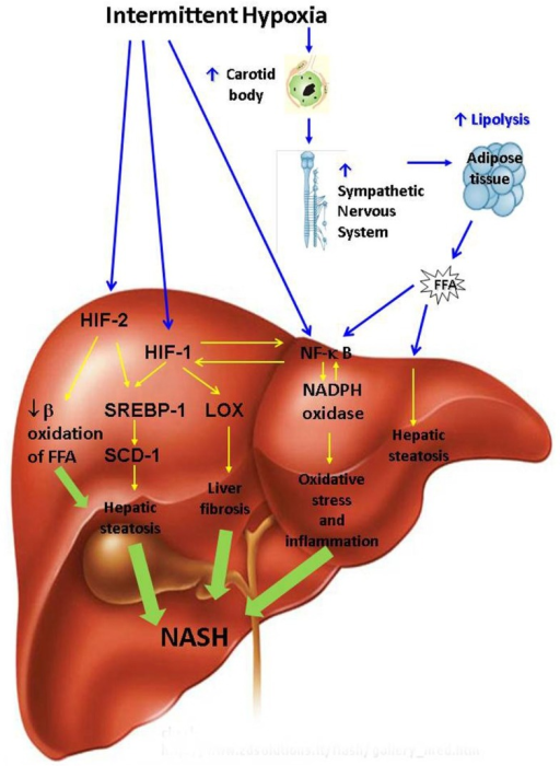 Putative pathways leading to non-alcoholic steatohepatitis (NASH) during intermittent hypoxia of obstructive sleep apnea. FFA, free fatty acids; HIF, hypoxia inducible factor; LOX, lysyl oxidase; NADPH, nicotinamide adenine dinucleotide phosphate (NADPH); NF-κB, nuclear factor kappa B; SCD, stearoyl coenzyme A desaturase; SREBP, sterol regulatory element binding protein.
