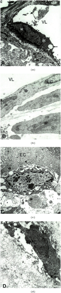 Electron Microscopic Peroxidase-anti-Peroxidase immunocytochemical determination of the distribution of NOS1 immunolabeling features in control (a) and metastatic colorectal cancer liver tumor tissues (b)–(d). (a) NOS1 immunopositive EC (indicated by asterisk) were seen in control liver microvessels. Vacuoles are indicated by single arrow X4 000. (b) Tumor vessel endothelium (indicated by asterisk) showed no staining for NOS1 antibody. X20,000. (c) NOS1 immunopositive white blood cells (indicated by asterisk) were attached to vessel endothelium in tumor growth regions. X6,000. (d) NOS1 immunopositive myofibroblast (smooth muscle cell) were seen in metastatic liver tumor tissues. X10,000. Reprinted with permission of J Submicrosc Cytol Pathol [2].